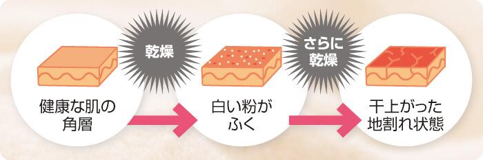 「乾燥した肌の状態」の図解