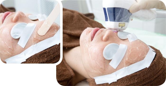 顔の医療脱毛。肌を保護するジェルを塗布し、レーザーを照射している様子
