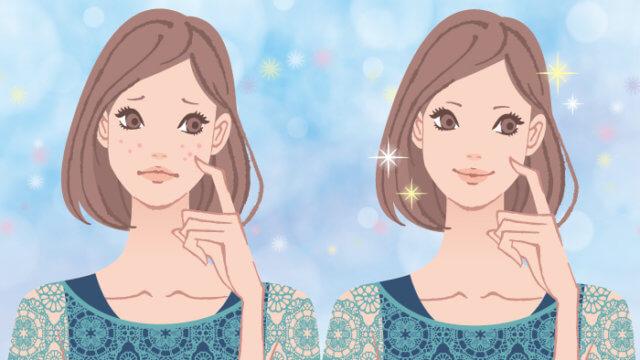 憧れのシミぽろりを体感!!美容皮膚科でシミ取りレーザーを打ってもらいました!!
